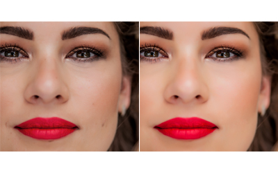 Removal of Spots, Blemishes and Moles